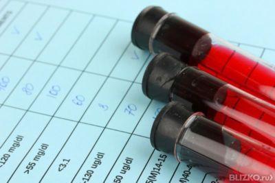 Анализ гистамин в крови Медицинское заключение о состоянии здоровья Бутырский район